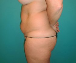 Manhattan abdominoplasty before 19